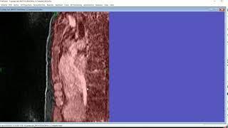 Chest wall segmentation from GRASP using MapFit
