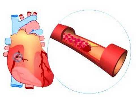What Causes A Heart Attack? video