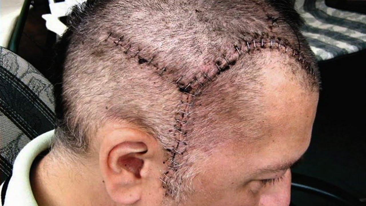 Aneurysm Operation Brain Brain Aneurysm Survival