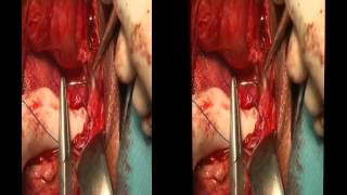 3D Total pelvic floor repair