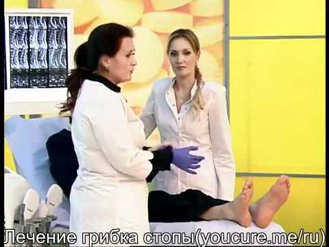 Лечение грибка стопы: советы экспертов