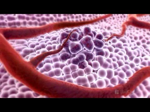 3D Medical Animation - What is Cancer?