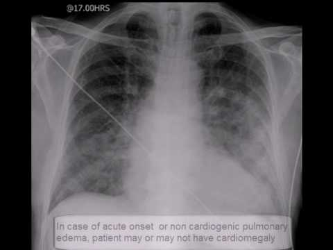 Chest x-ray. Pulmonary edema. lungs