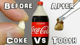 What Does It Do? – Coke Vs Teeth Experiment