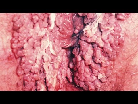 Enfermedades Venereas: Clamidia, Como Se Contagia La Clamidia, Como Se Cura La Clamidia