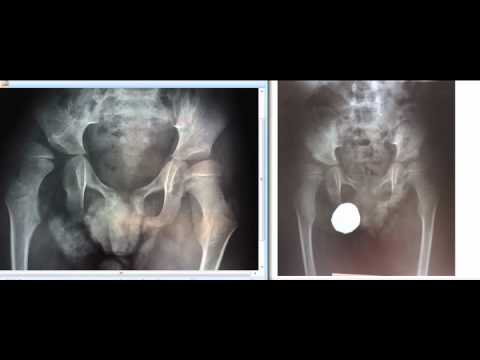 Quadriplegic Cerebral Palsy Pelvis Transformation_Mind Blowin Miracle.avi