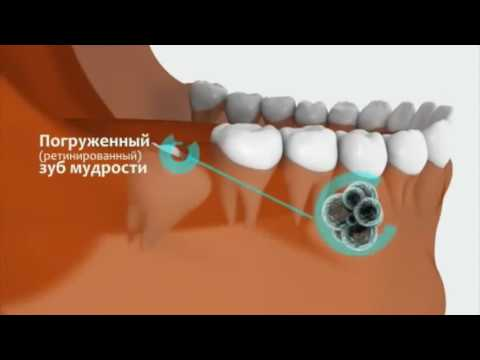 Как снять воспаление с зуба в домашних условиях