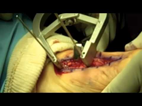 Simplified Lapidus Medial Approach Technique with Bone Graft Video.m4v