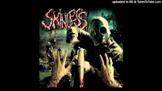 Watch Skinless Spoils Of The Sycophant video