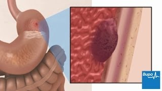 Home Remedy For Stomach Ulcer Uk