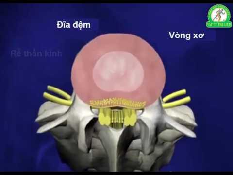 Phương pháp điều trị thoát vị đĩa đệm hiệu quả nhất