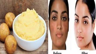 आलू चेहरे की खूबसूरती को कई गुना बढ़ा देगा जानिए कैसे Potato for Face Whitening