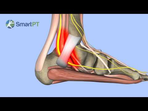 how to help a pinched nerve in foot