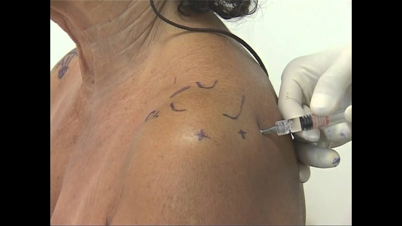 Shoulder Injection Posterior