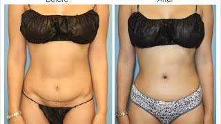 Tummy Tuck Revision and Repair by Dr. Cat