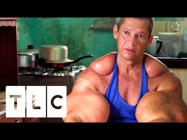 Bodybuilders Inject Muscles With Oil  Real Life Hulks