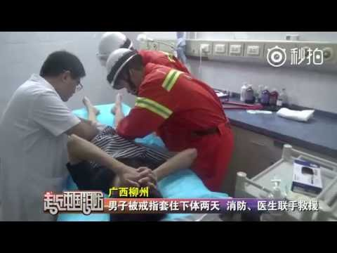 Man gets ring stuck on peni s for 2 days, firefighters finally free his manhood