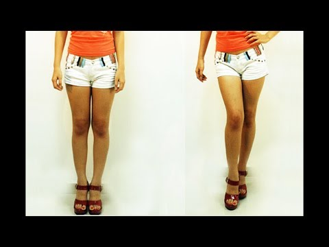 How To Straighten Bow Legs In Adults Without Surgery   Exercises for Bow Legs Correction
