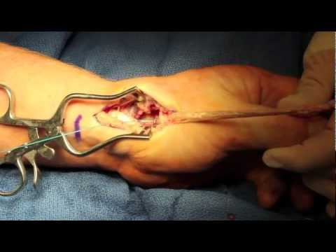 Live Surgery Thumb Arthroplasty and Ligament Reconstruction (LRTI) for Arthritis.m4v