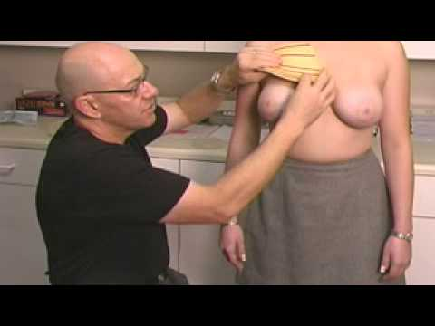 Inverted Nipple Correction Surgery - Dr. Romano