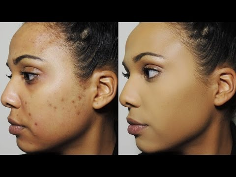 How I Cover Dark Spots & Acne Scars   Ashley Bond Beauty