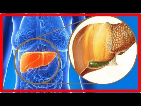 Nahrungsmittel, die deine Leber entgiften und deine Gesundheit fördern