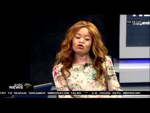 Curbing albinism killings