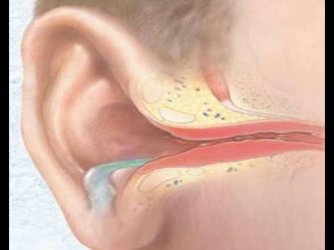 Болит ухо внутри как лечить народными средствами