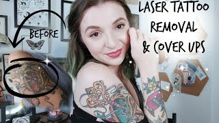 Tattoo Talk Tuesday! Laser Removal and Cover ups!