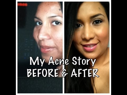 How To Get Rid of Acne. (Tips, before pics, and story)❤