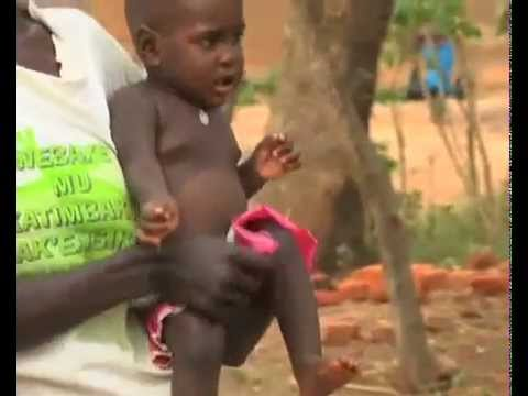 Uganda making great strides in eliminating mother-to-child HIV infection