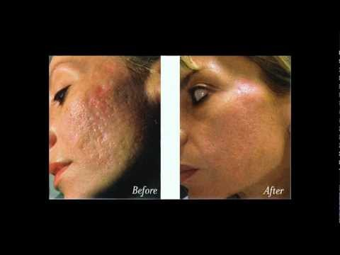 Acne Myths & Facts Revealed
