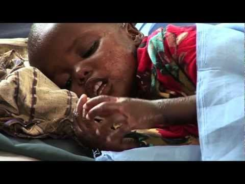 Famine spreads to more areas of Somalia -- UN