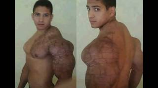 Synthol muscle Fail