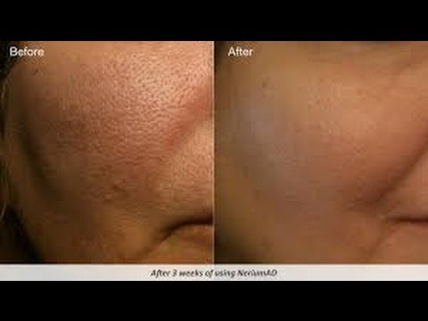 Remedios Caseros para Reducir Poros / How to Minimize Pores Naturally