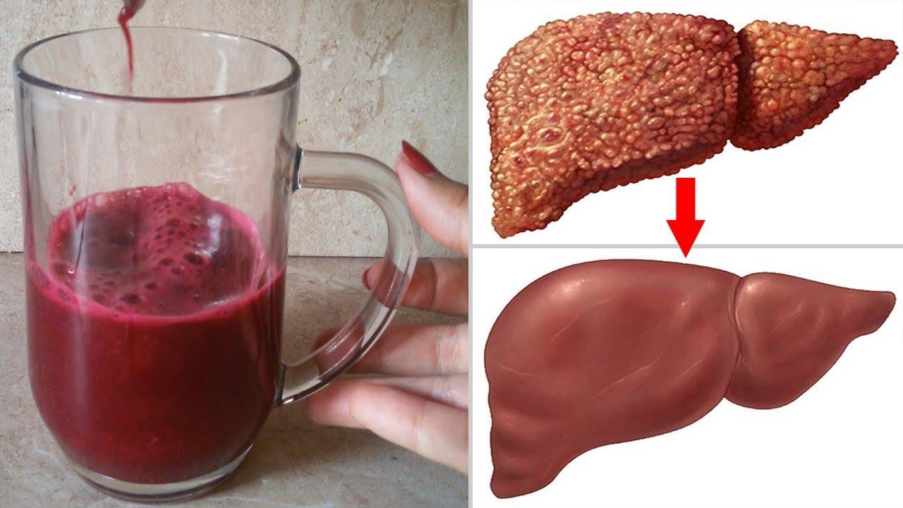 اشرب منه لمدة اسبوع يعالج الكبد و يعمل على طرد السموم ستصبح بصحة جيدة