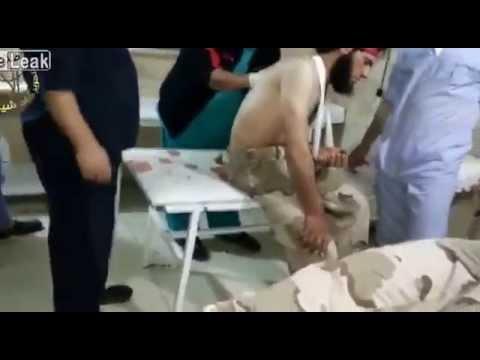 LiveLeak.com - Syria   Hawks Brigade wounded snackbarian citizen 18 04