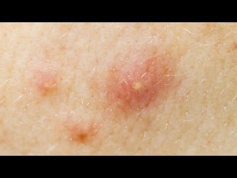 Acne Treatment - Accutane (Isotretinoin)