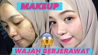 Makeup Untuk Wajah Berjerawat Parah dan Bolong-bolong (Makeup for Acne and The Scars)