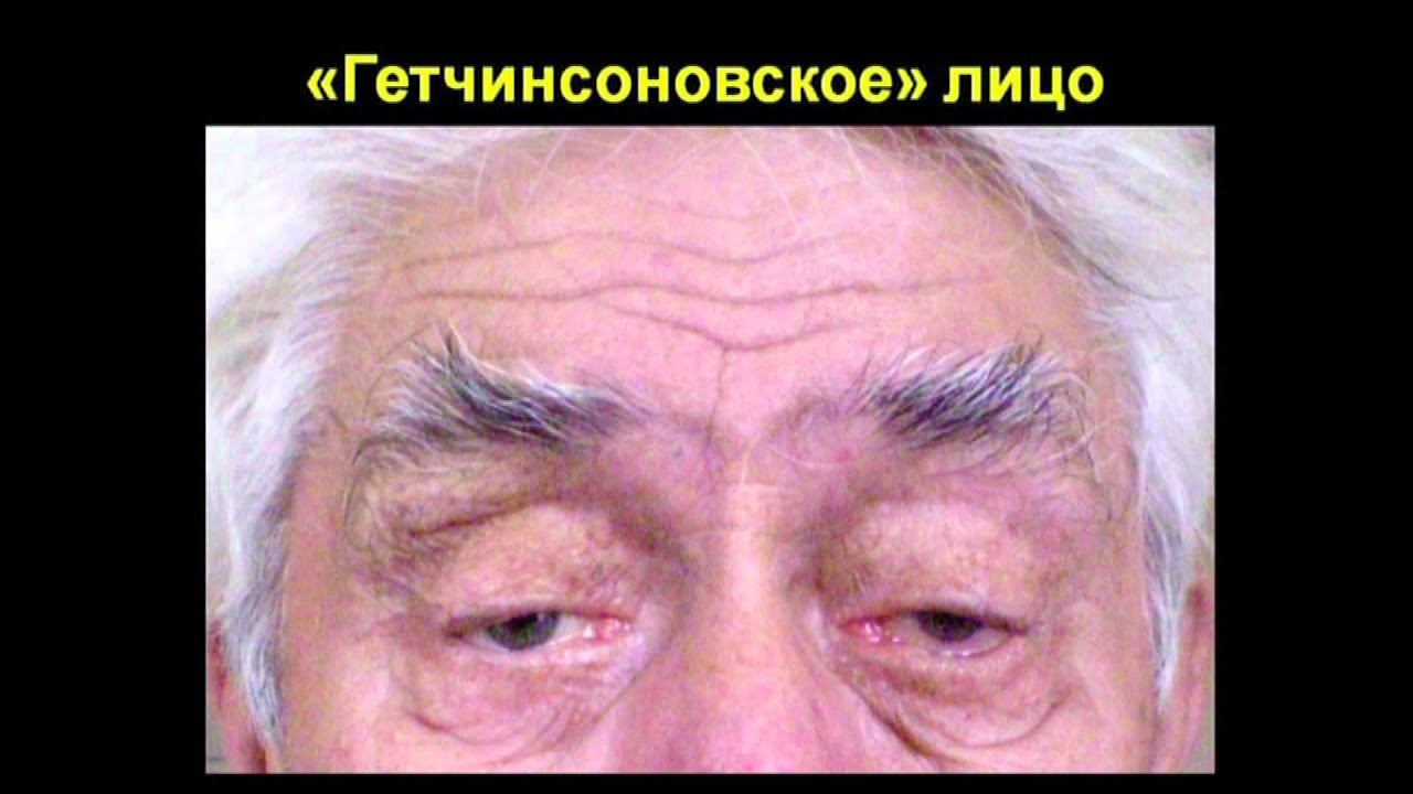 Нейросифилис фото