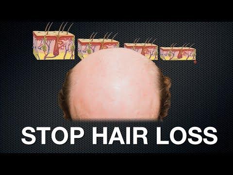 STOP HAIR LOSS   Endhairloss eu trailer