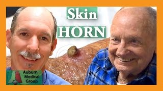 Skin HORN removal | Auburn Medical Group