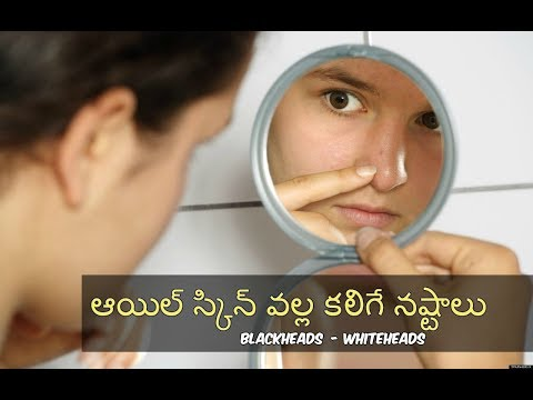 Effects of oil skin - causes - beauty tips  || Okra Beauty & Fashion