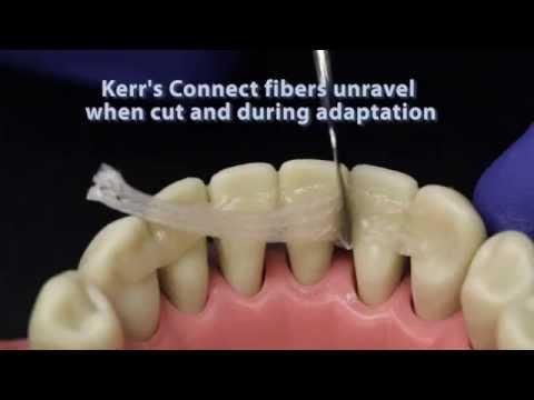 Что такое шинирование зубов риббонд