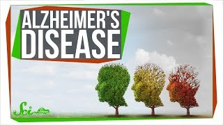 How Close Are We to Curing Alzheimer