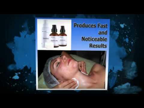 Glycolic Peels Acne Treatment