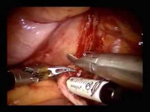 Header of cystectomy