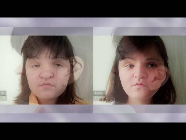 Синдром Пфайффера фото