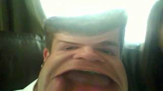 download lagu Kgb...ugliest Face In The World Deformed Face gratis