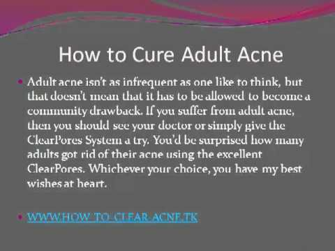 How to cure adult acne.mp4